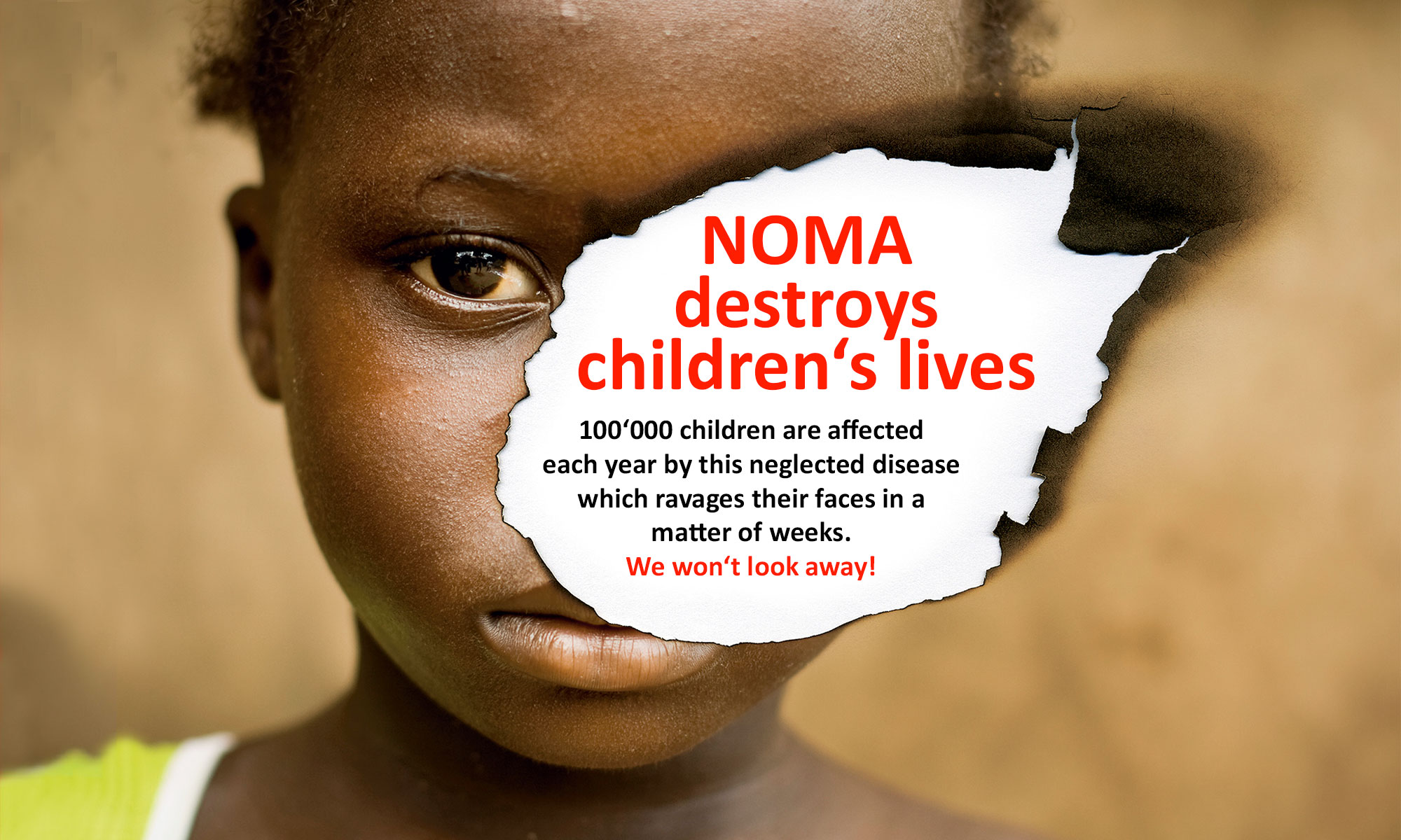 NOMA destroys children's lives.