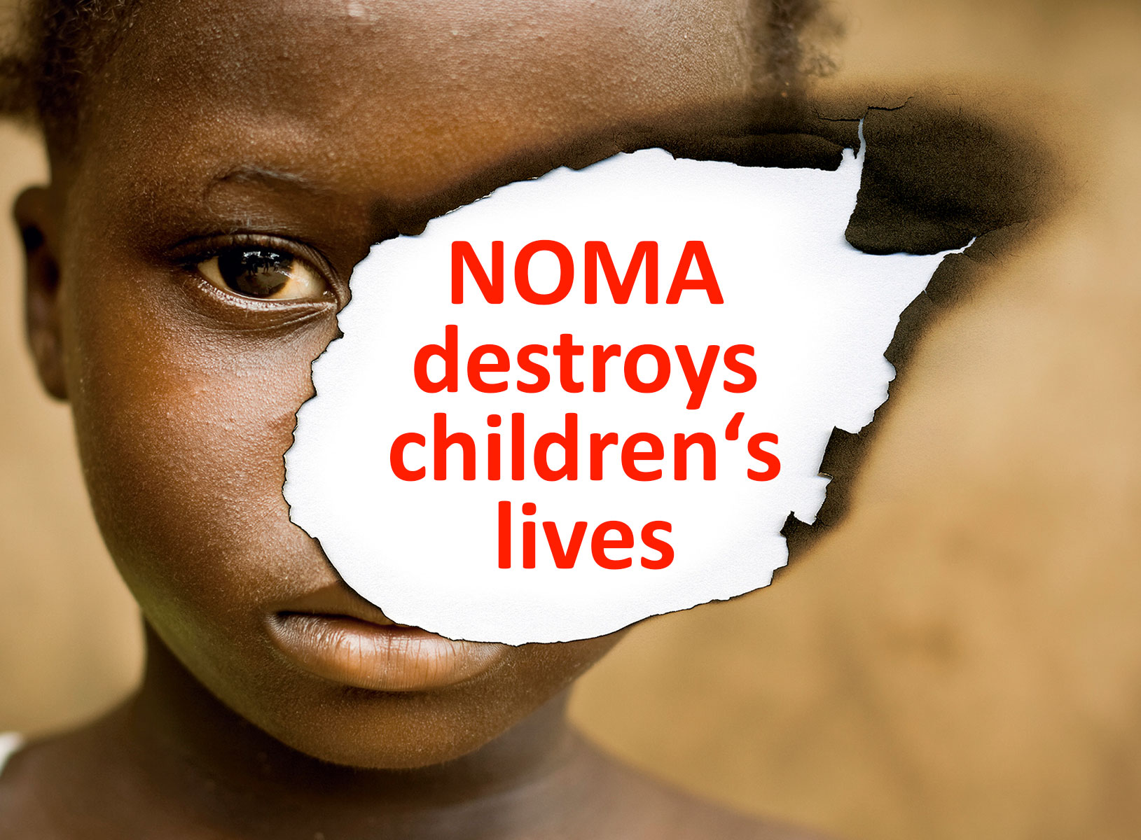NOMA destroys children's lives